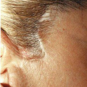 Dermopigmentation réparatrice cicatrices