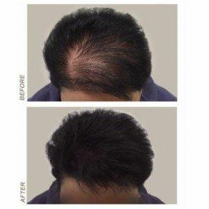 Dermopigmentation réparatrice
