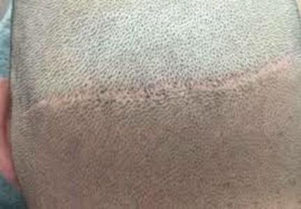Dermopigmentation réparatrice cicatrice