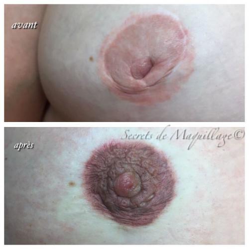 Dermopigmentation Areole Mammaire